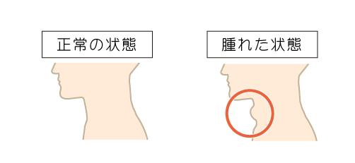 甲状腺の特徴
